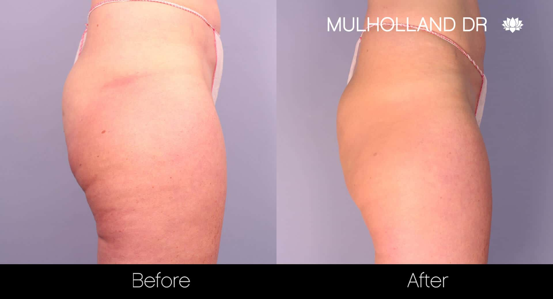Cellfina Cellulite Treatment - Before and After Gallery – Photo 5