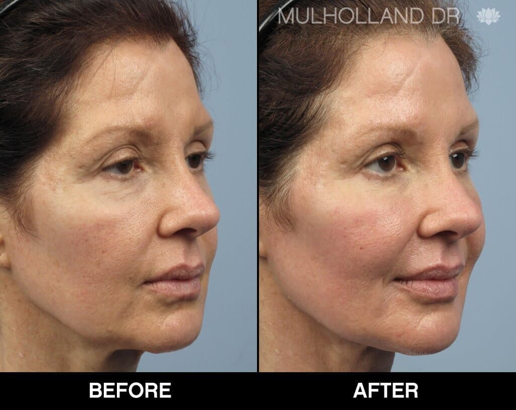 Dermal Fillers Before and After Gallery – Photo 140
