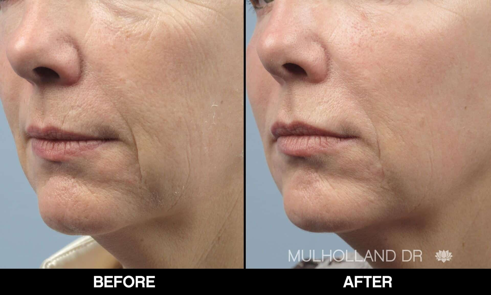 Fractional CO2 Laser Before and After Gallery – Photo 21