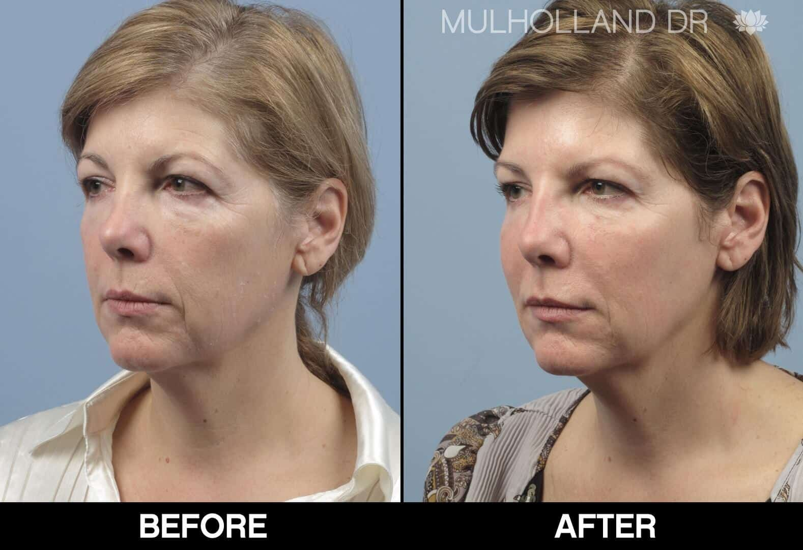 Fractional CO2 Laser Before and After Gallery – Photo 19