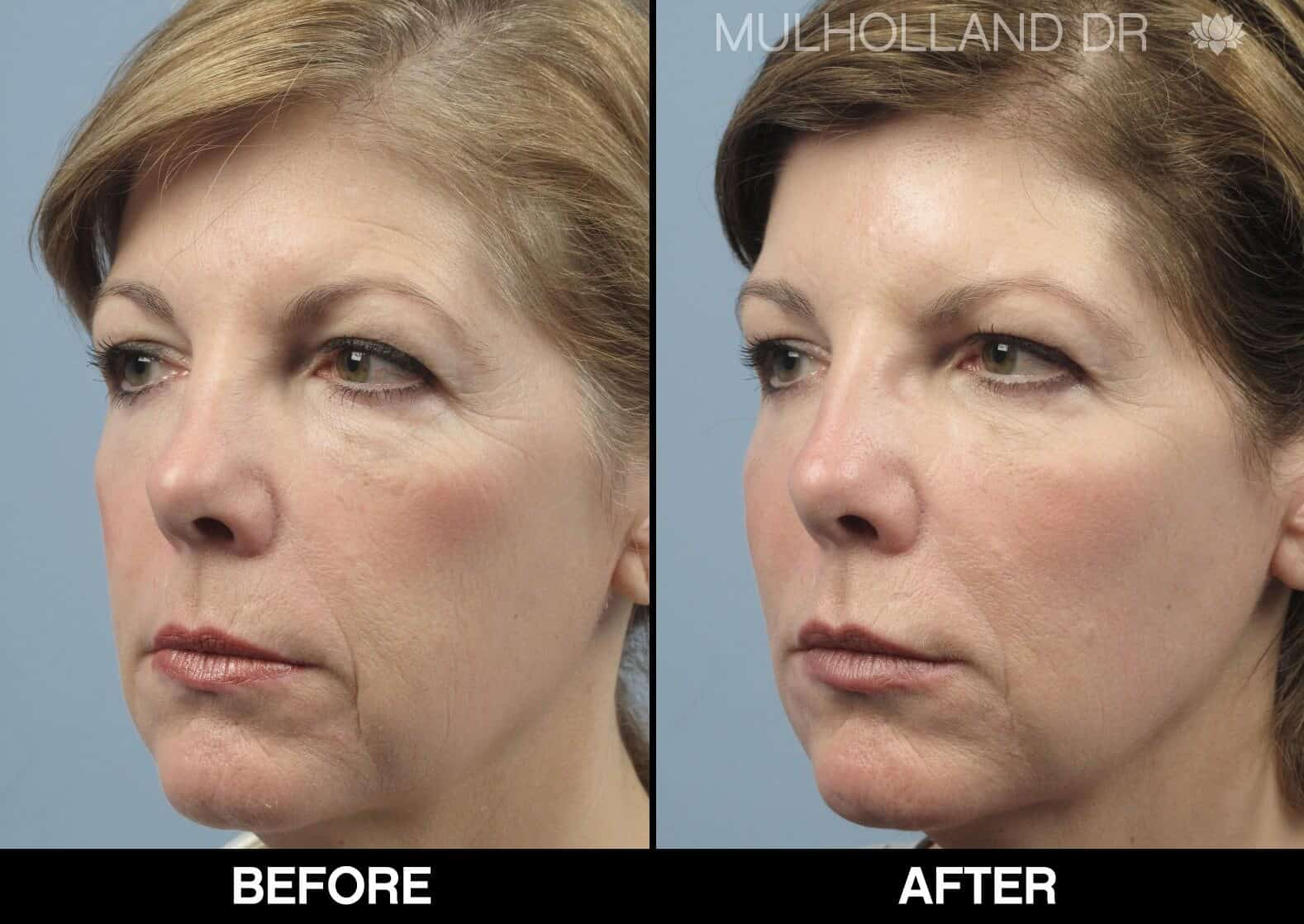 Fractional CO2 Laser Before and After Gallery – Photo 18