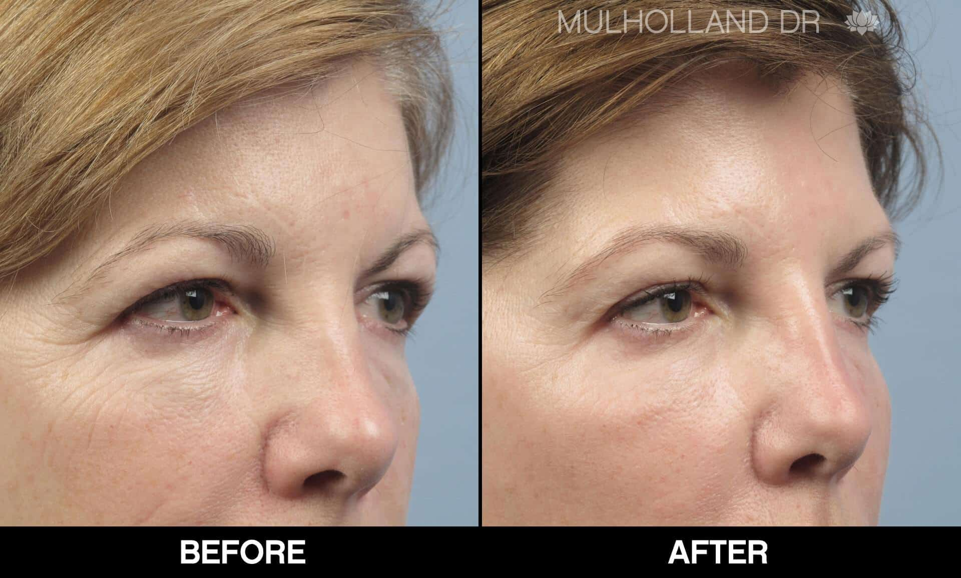 Fractional CO2 Laser Before and After Gallery – Photo 16