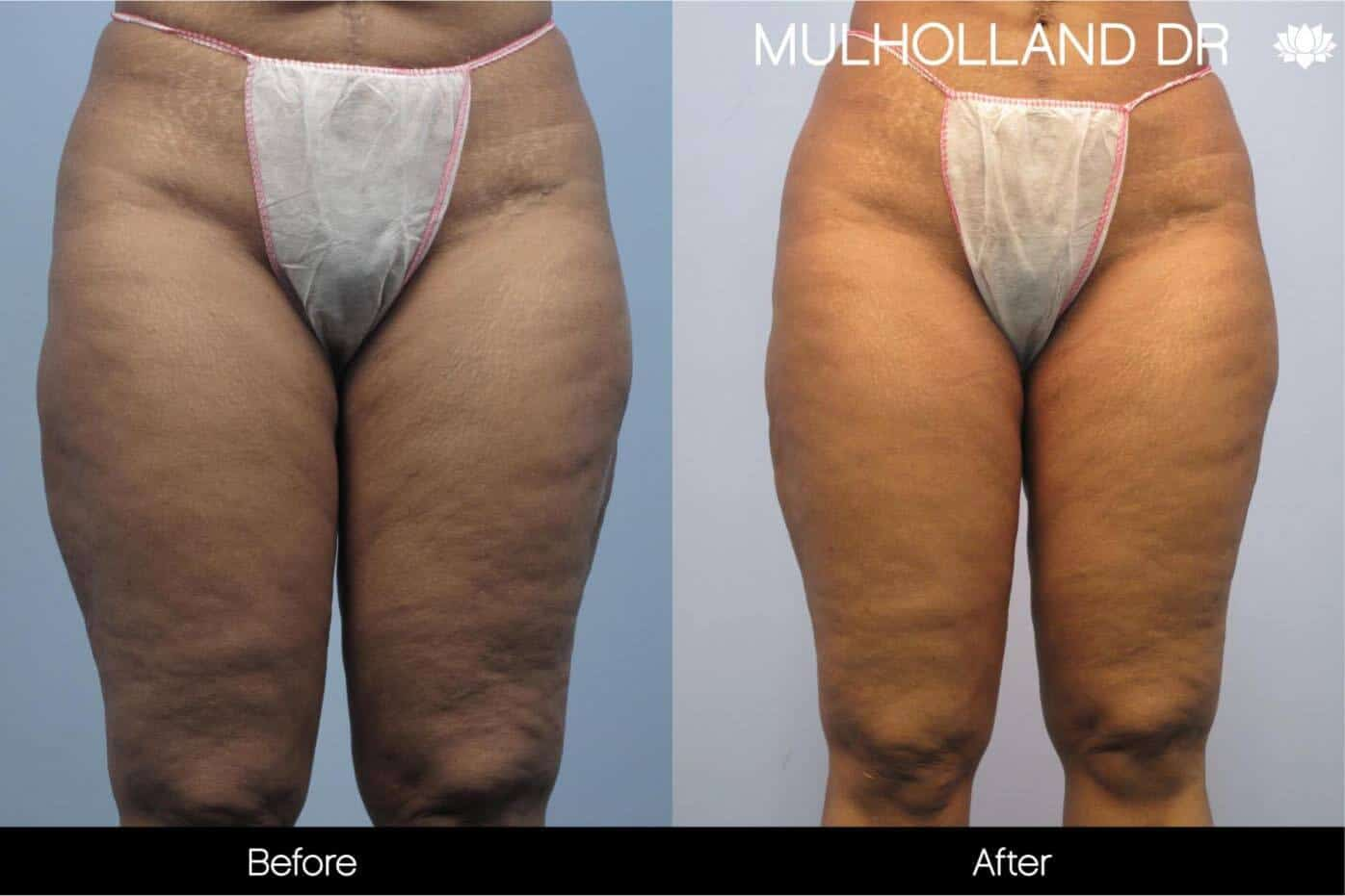Cellulite Reduction Before and After Gallery – Photo 44