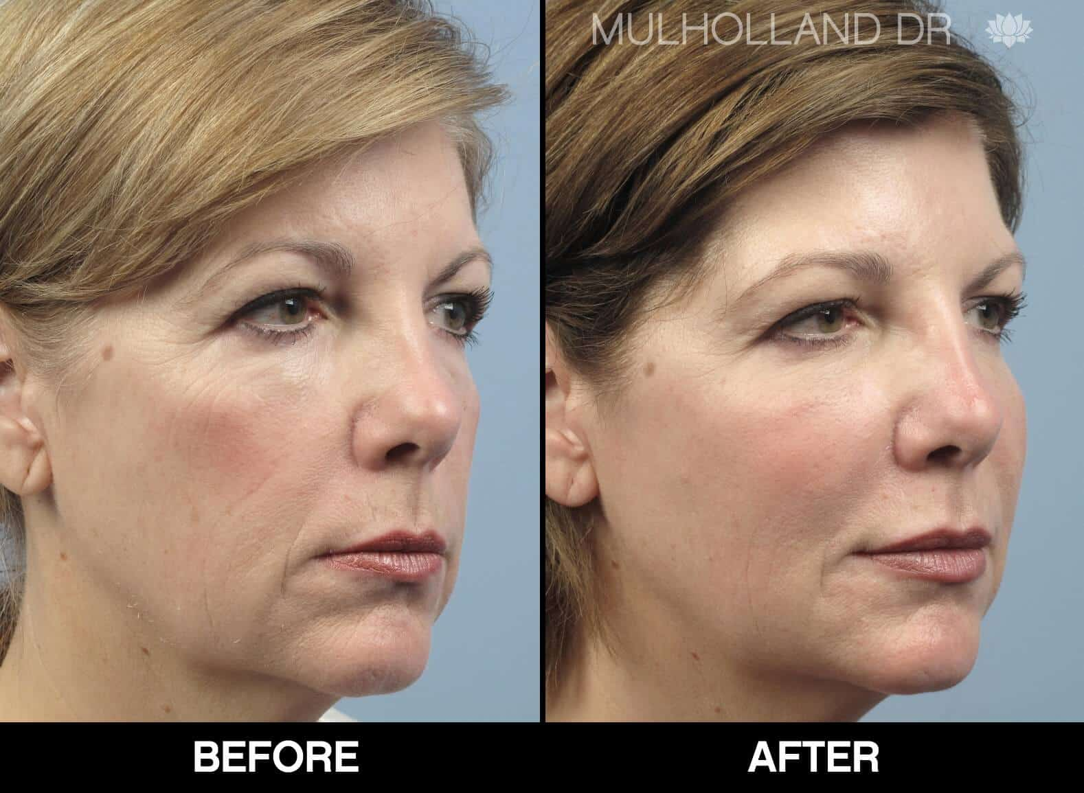 Fractional CO2 Laser Before and After Gallery – Photo 14