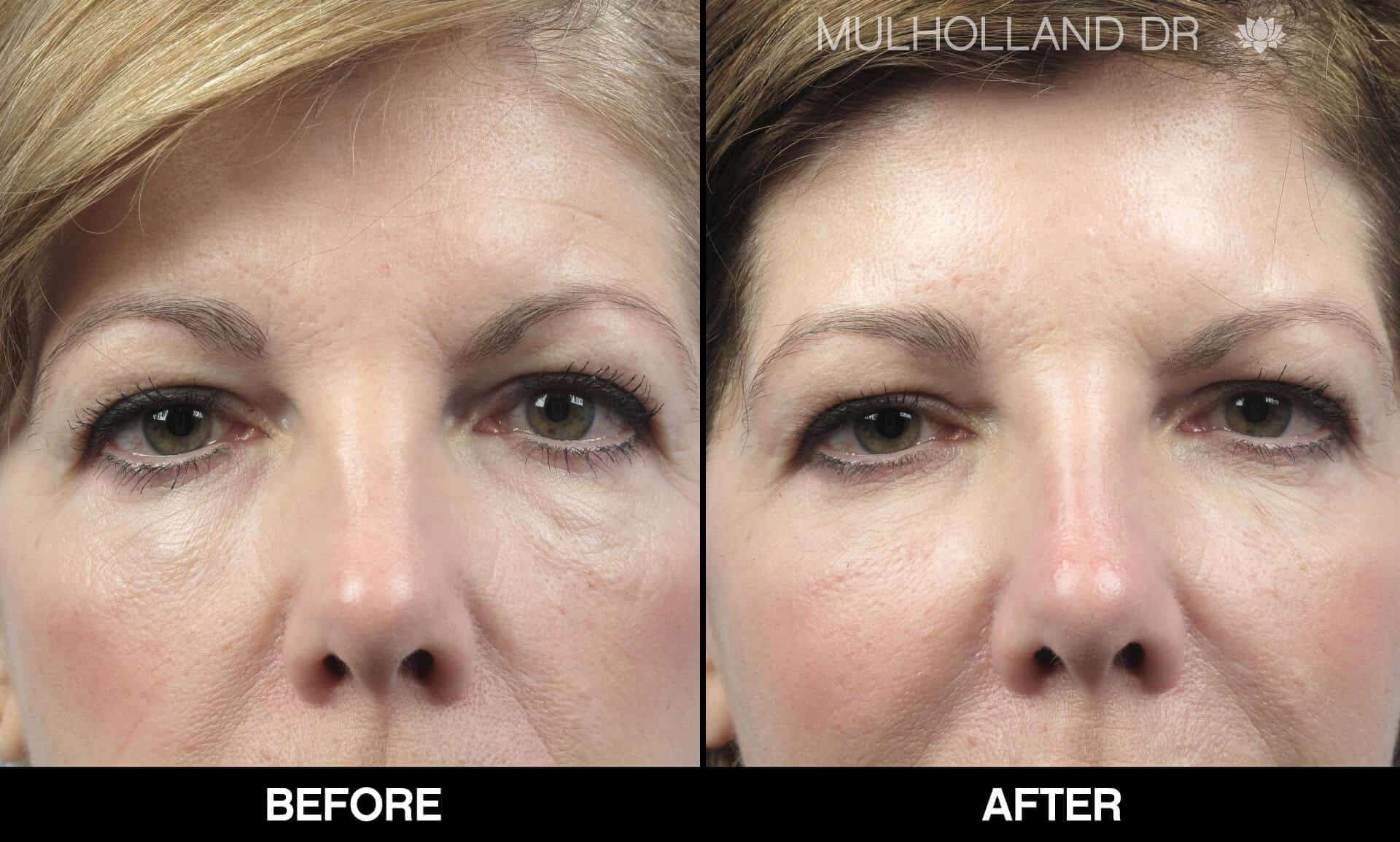 Fractional CO2 Laser Before and After Gallery – Photo 13