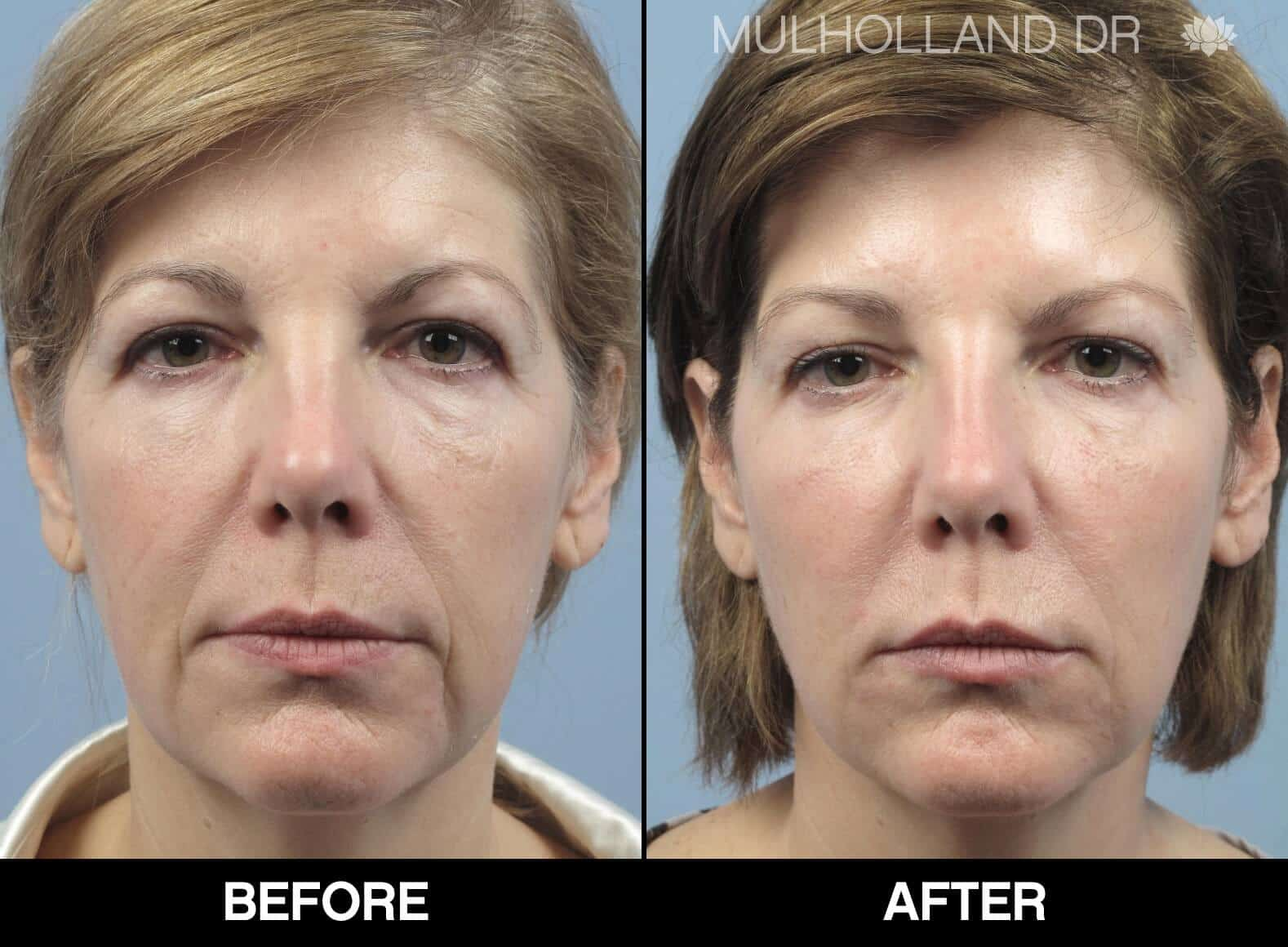 Fractional CO2 Laser Before and After Gallery – Photo 11