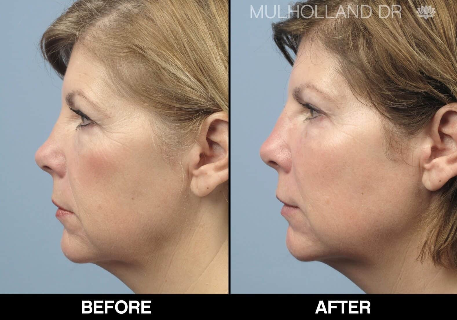 Fractional CO2 Laser Before and After Gallery – Photo 8