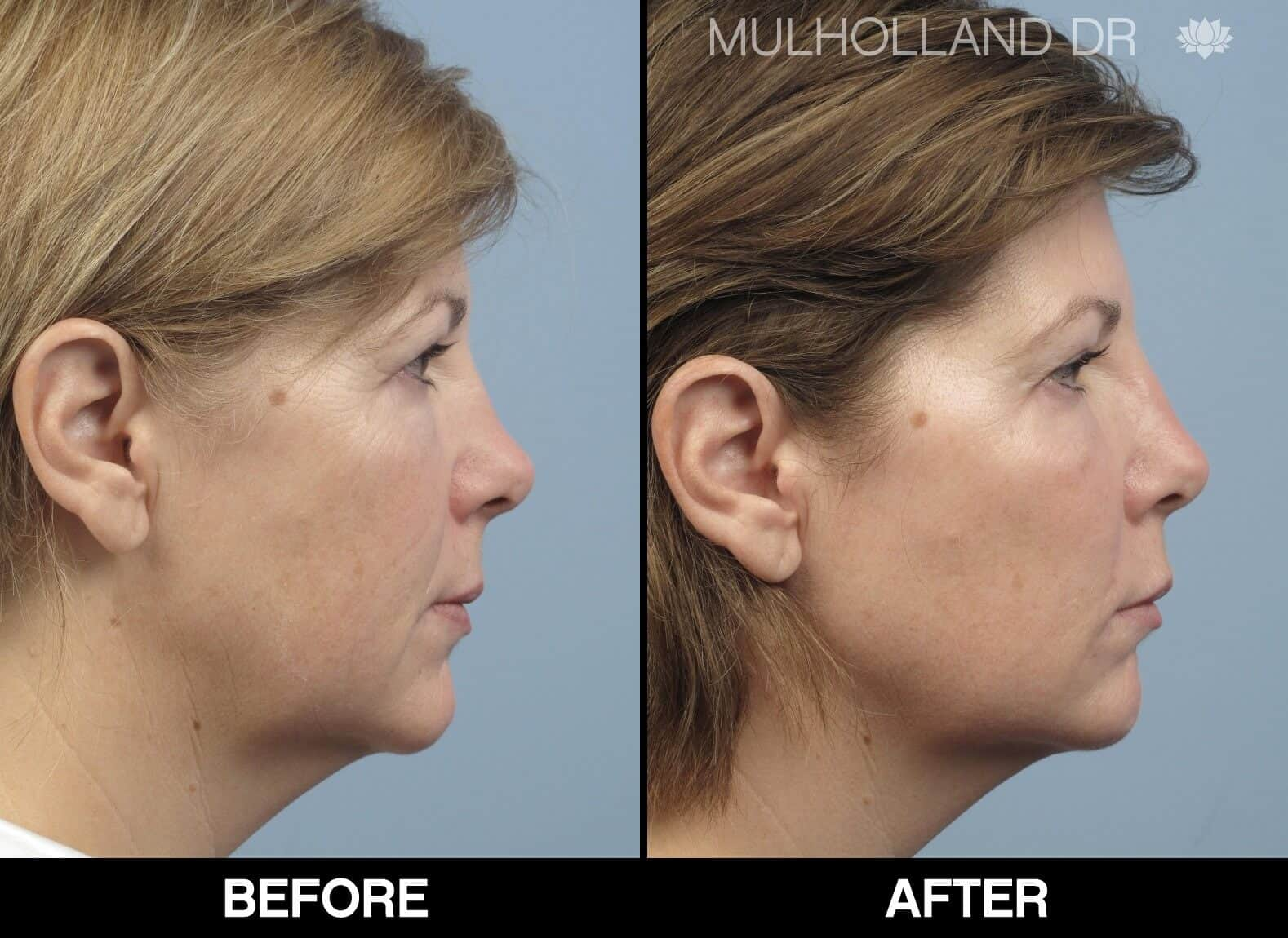 Fractional CO2 Laser Before and After Gallery – Photo 6