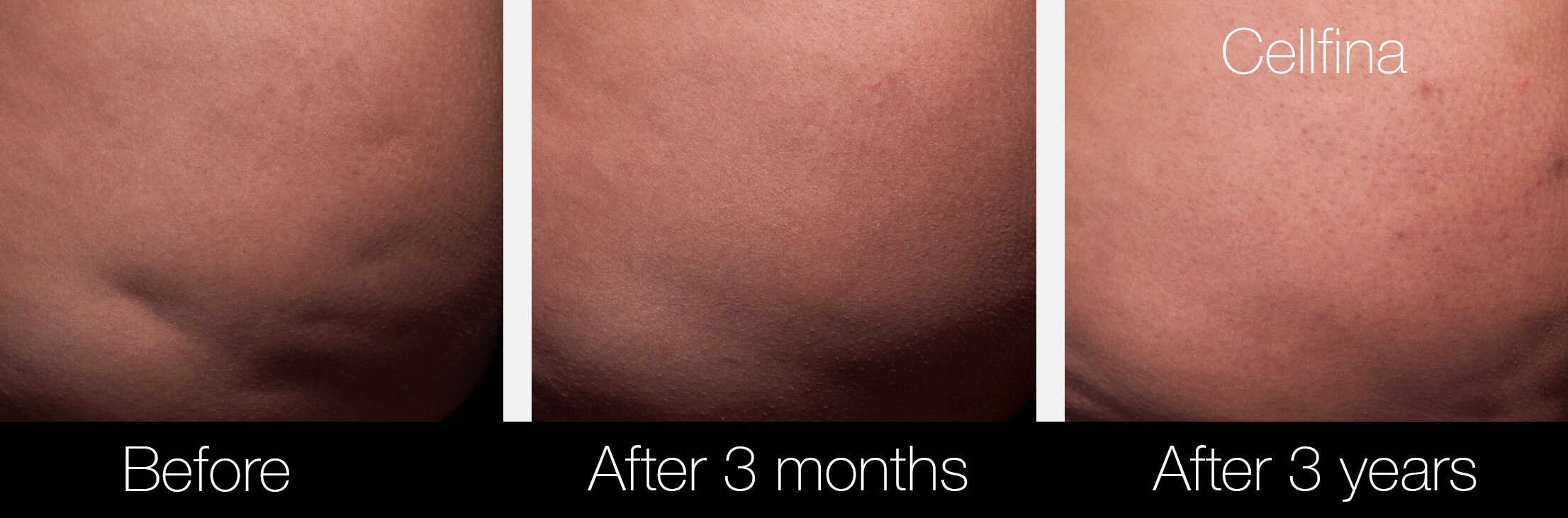 Cellfina Cellulite Treatment - Before and After Gallery – Photo 9