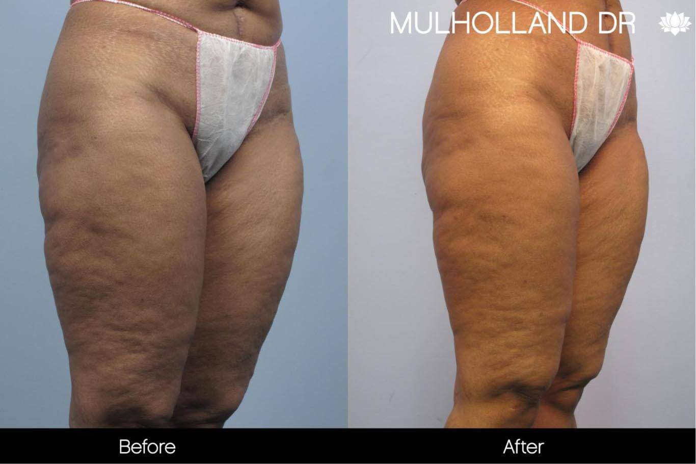 Cellulite Reduction Before and After Gallery – Photo 43