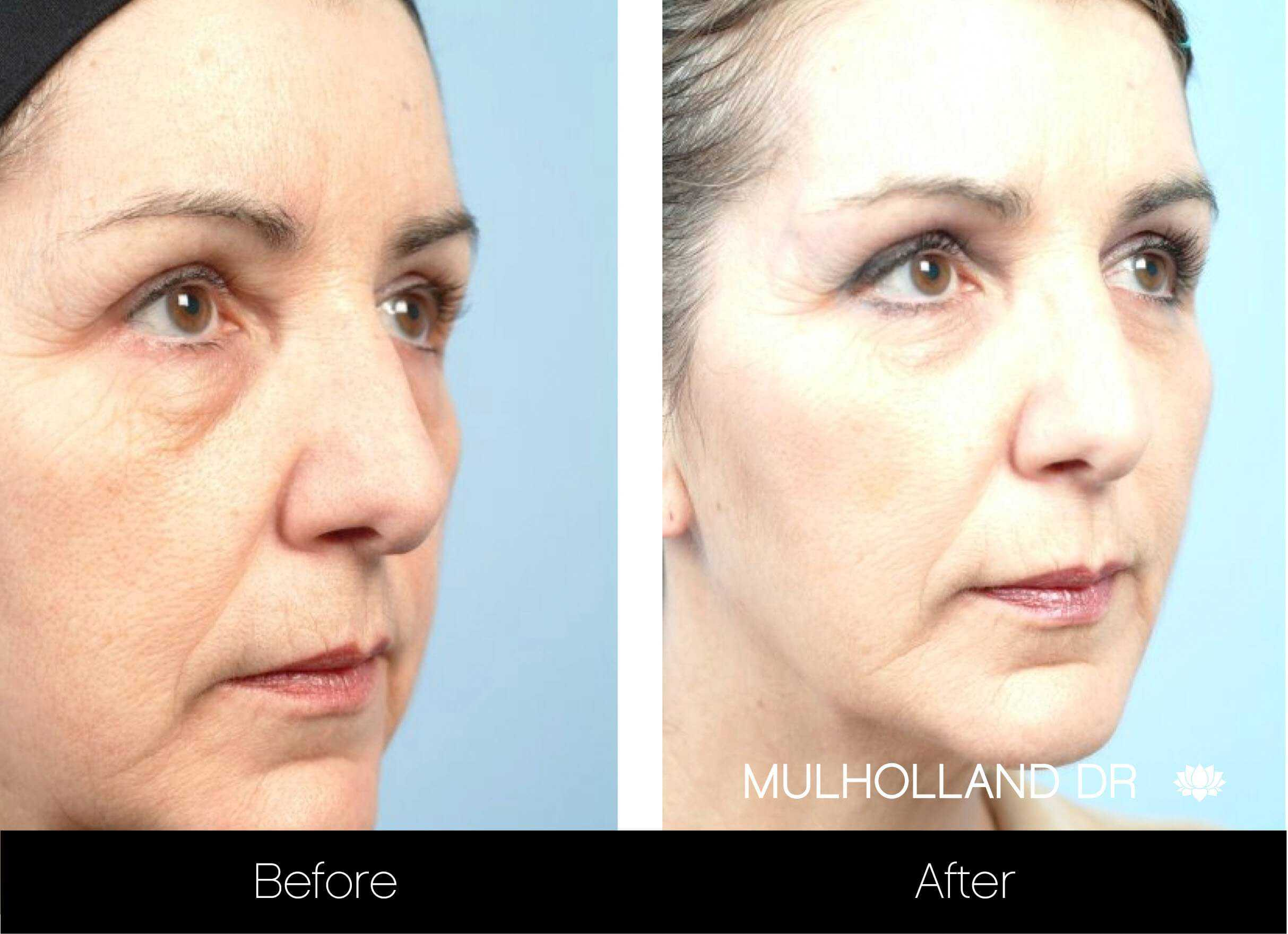 Fractional CO2 Laser Before and After Gallery – Photo 4