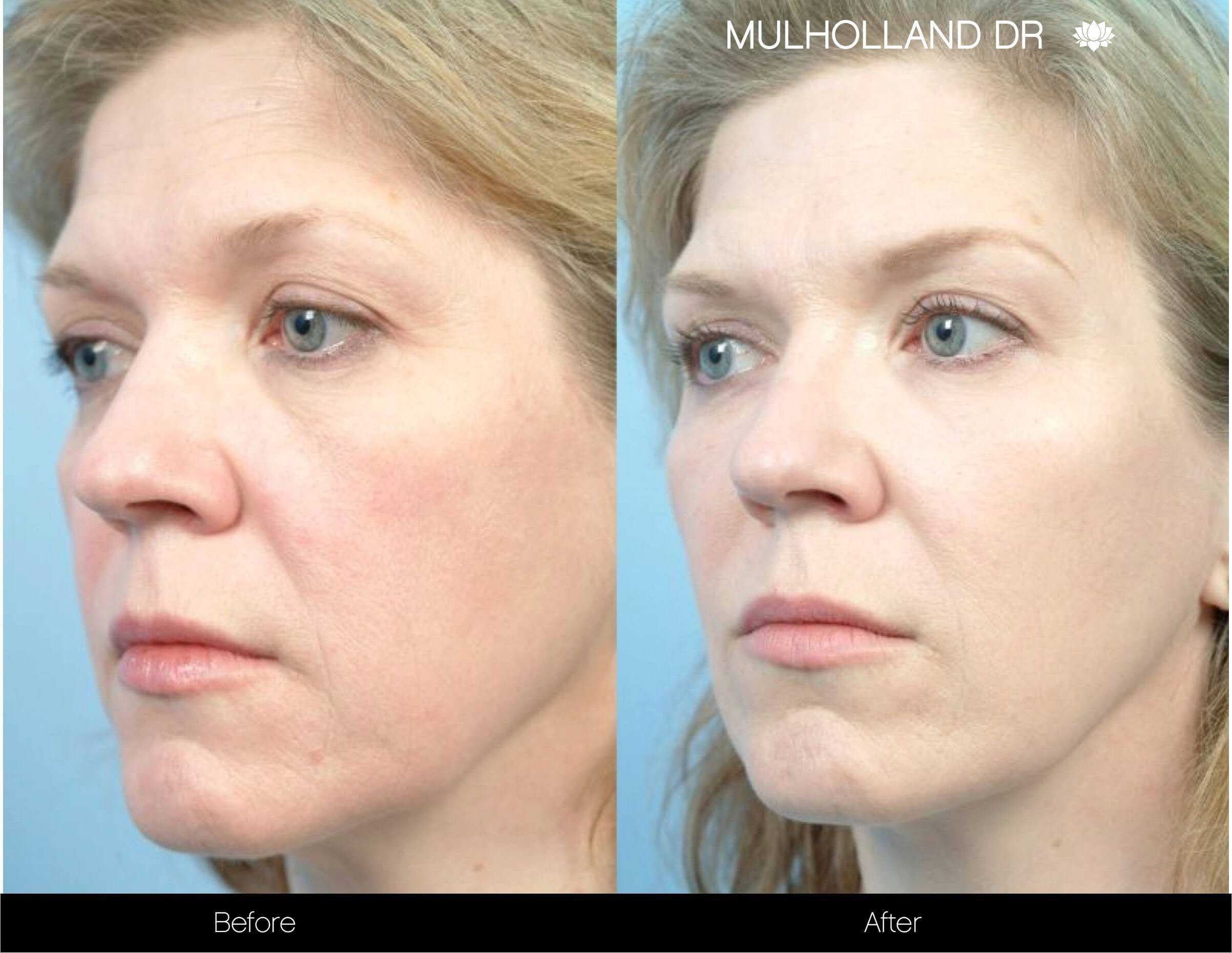 Fractional CO2 Laser Before and After Gallery – Photo 1