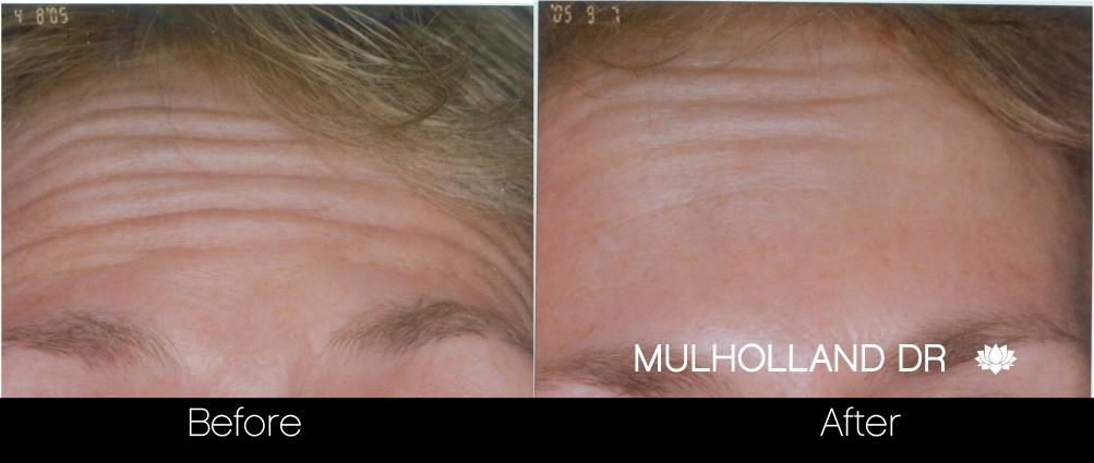 Botox Before and After Gallery - Photo 11