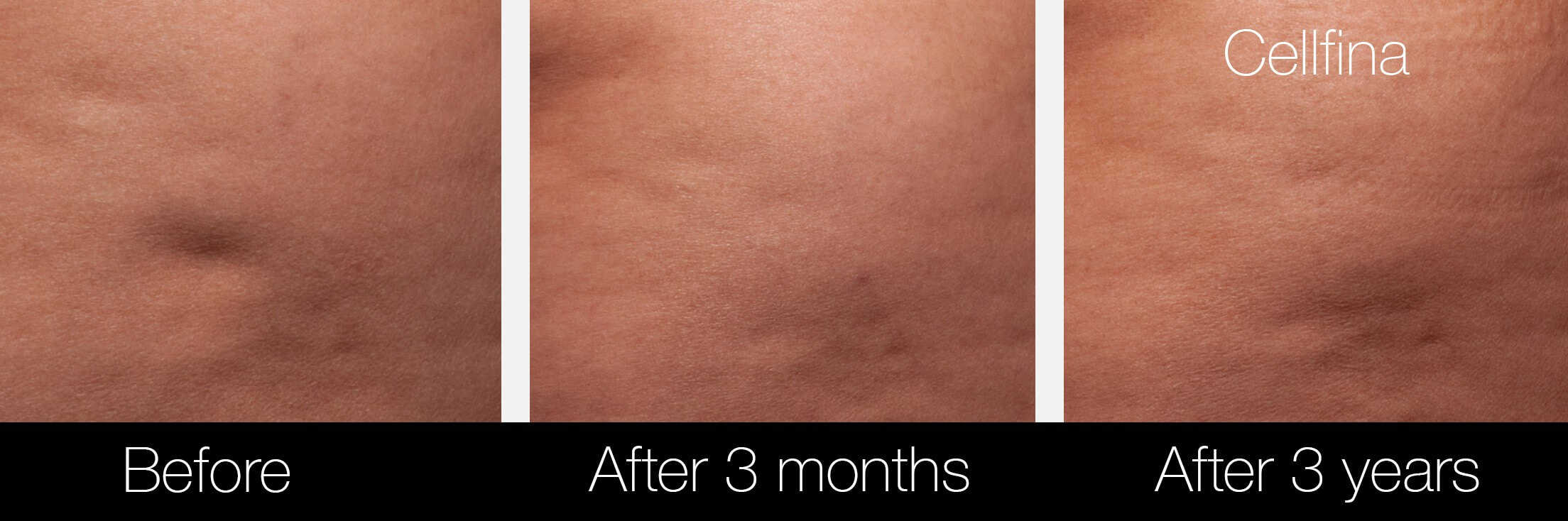 Cellfina Cellulite Treatment - Before and After Gallery – Photo 8