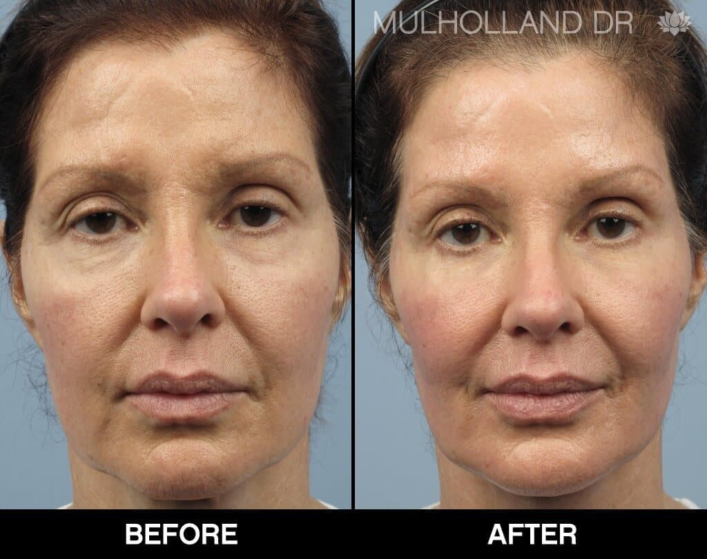Dermal Fillers Before and After Gallery – Photo 136