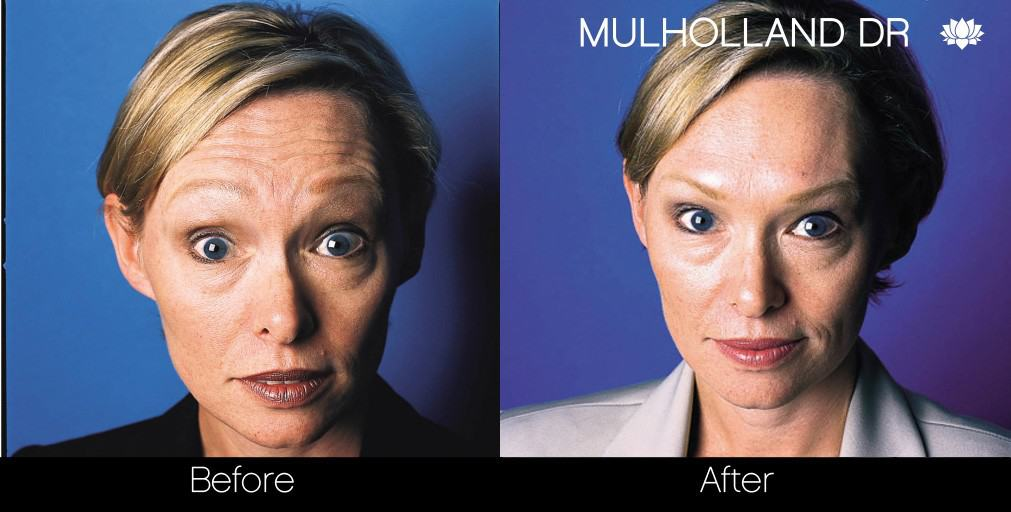 Botox Injectable - Before and After Gallery – Photo 10