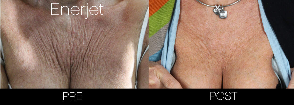 EnerJet Treatment - Before and After Gallery – Photo 10
