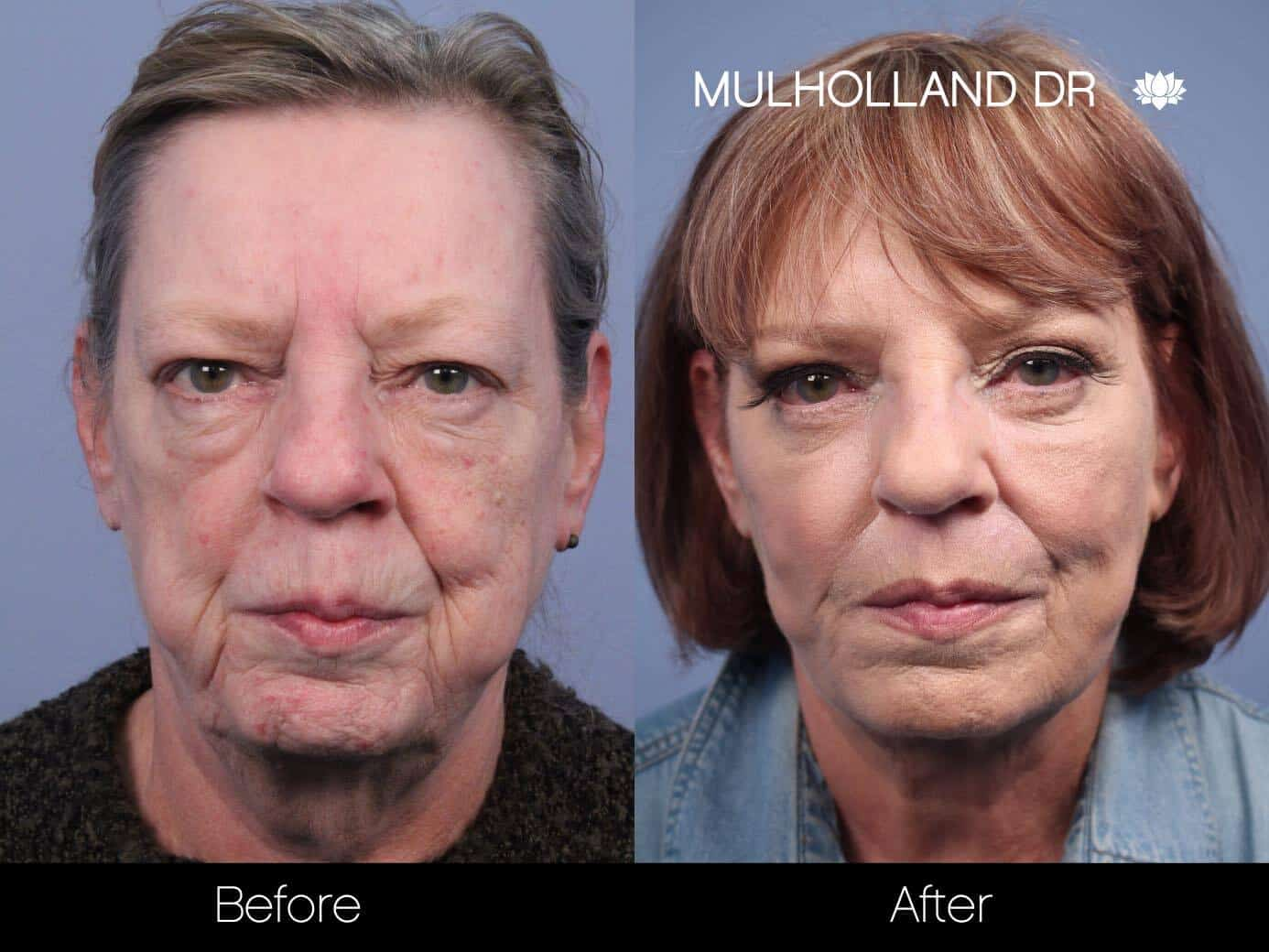 Non-Surgical Facelift - Before and After Gallery – Photo 10