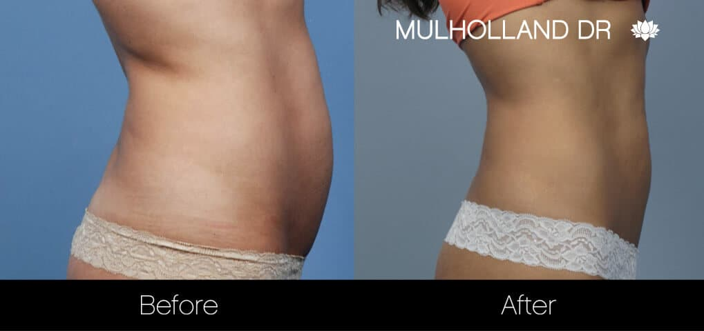 Non-Surgical Liposuction - Patient 10