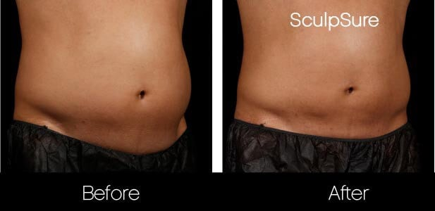 SculpSure - Before and After Gallery – Photo 11