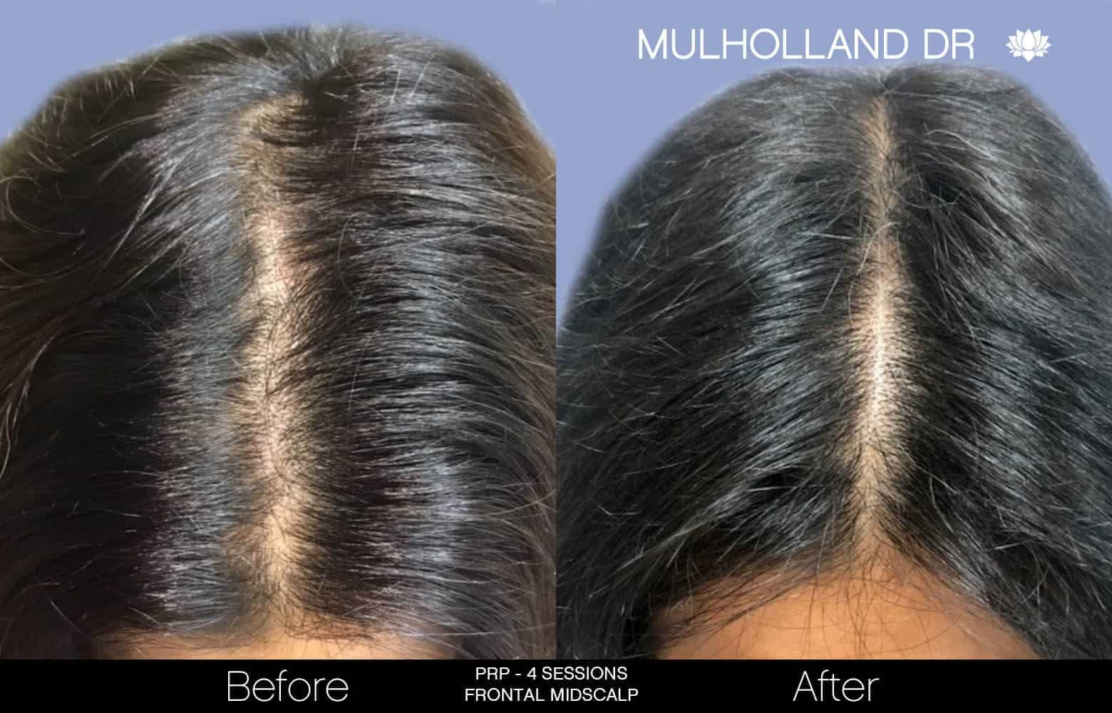 Non-Surgical Hair Restoration - Patient Before and After Gallery – Photo 10