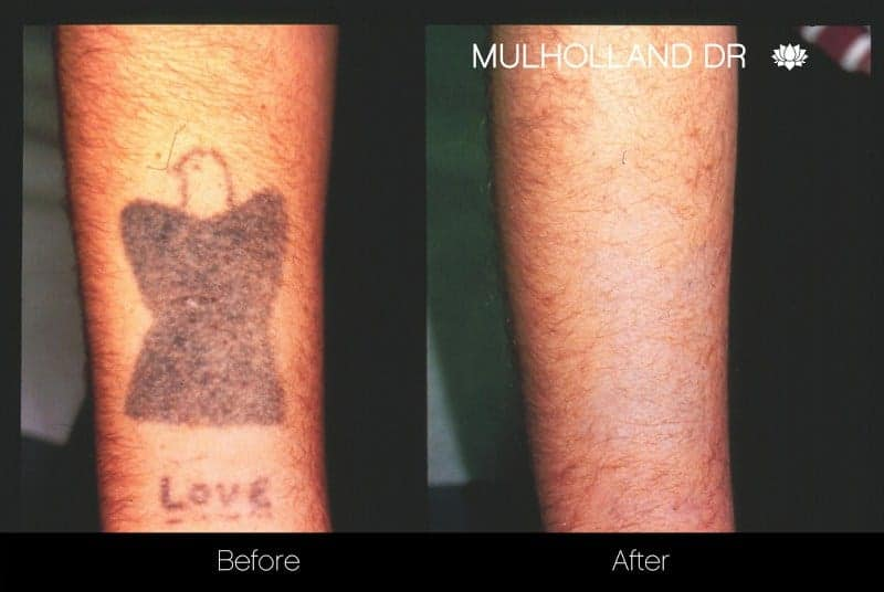 Laser Tattoo Removal - Before and After Gallery – Photo 10