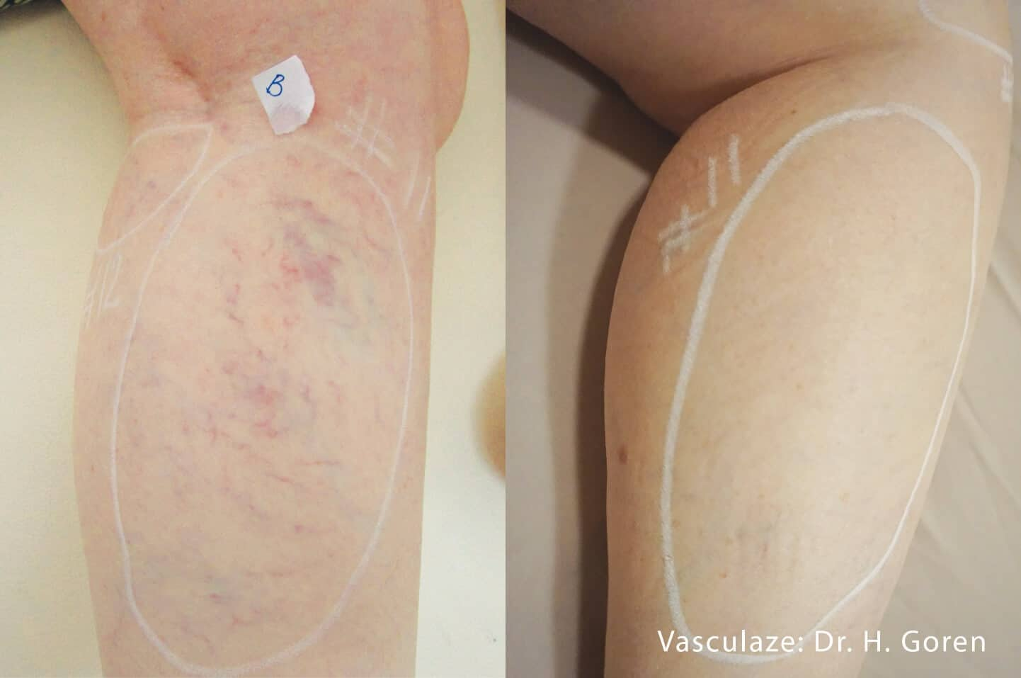 Leg Vein Reduction - Patient Before and After Gallery – Photo 10