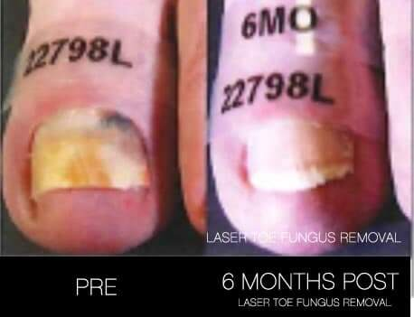 Toe Fungus Removal - Patient Before and After Gallery – Photo 10
