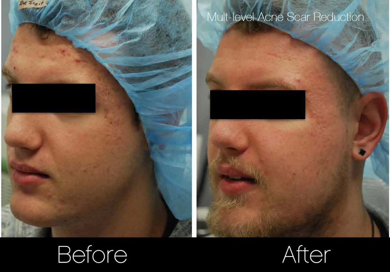 Acne Scar Treatments - Before and After Gallery – Photo 11
