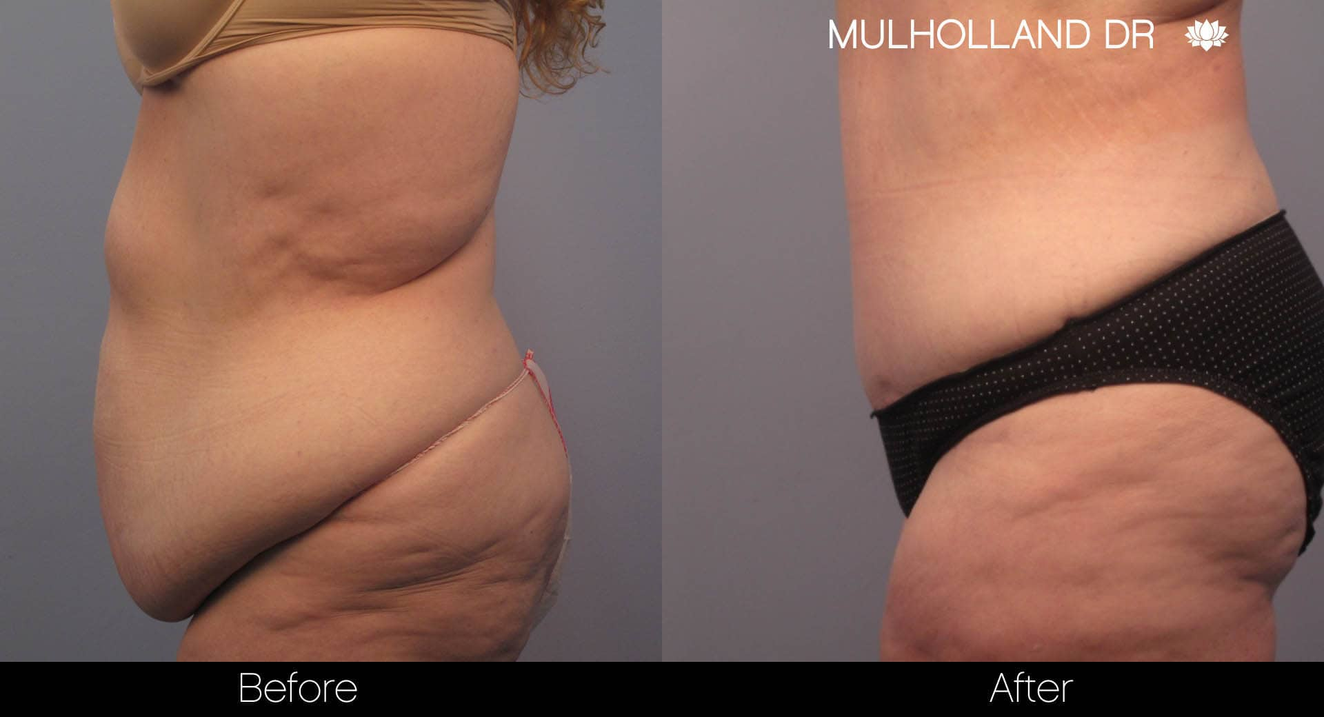 Tummy Tuck - Before and After Gallery – Photo 10