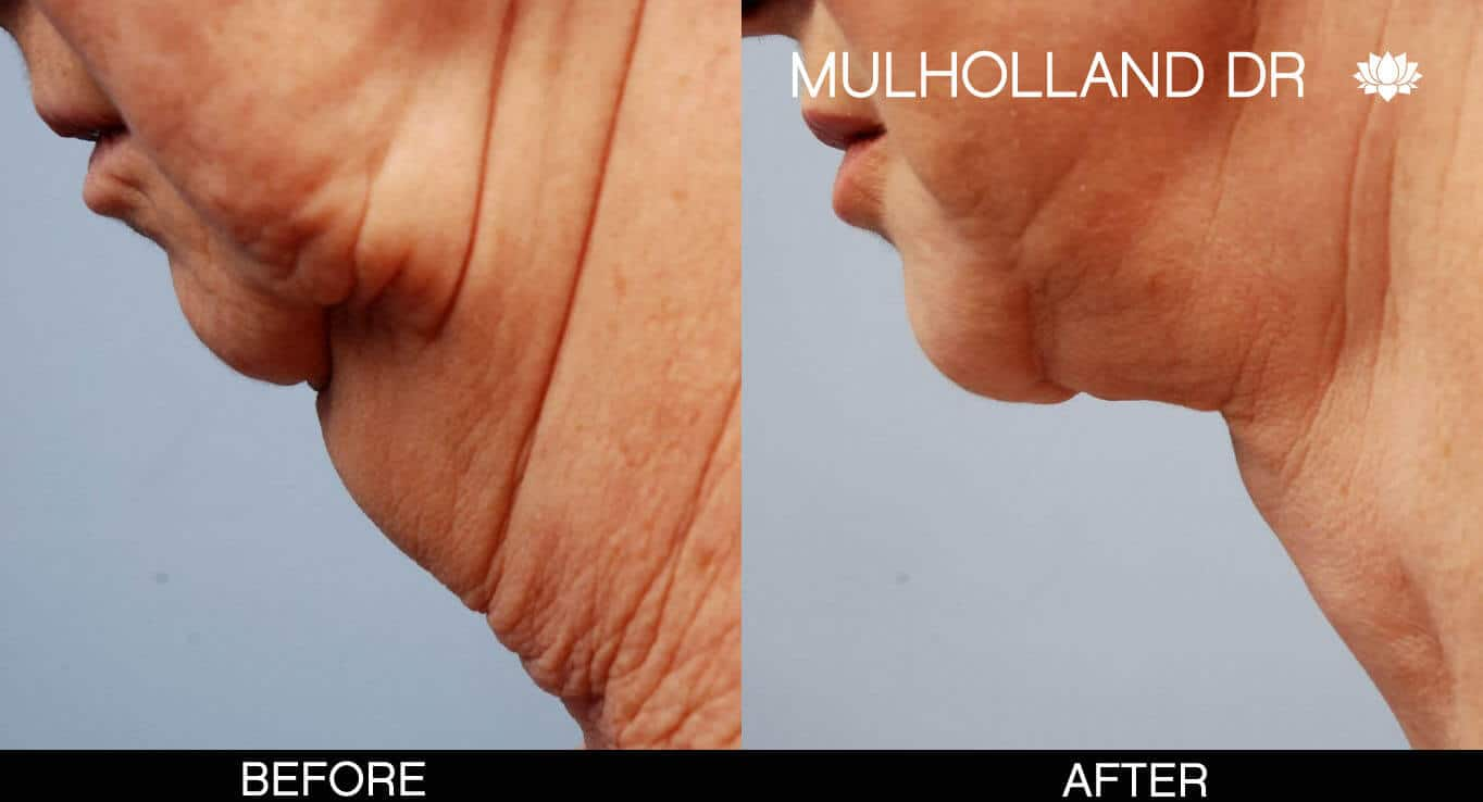 Chin Implant - Before and After Gallery – Photo 10