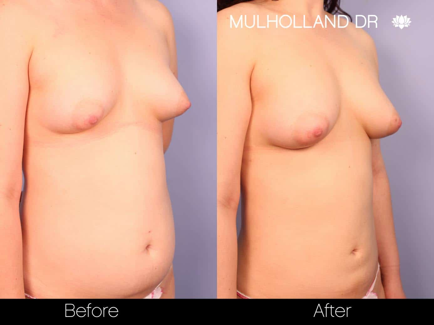 Fat Grafting Breast Augmentation - Before and After Gallery – Photo 10