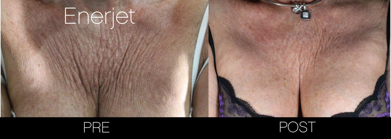 EnerJet Treatment - Before and After Gallery – Photo 11