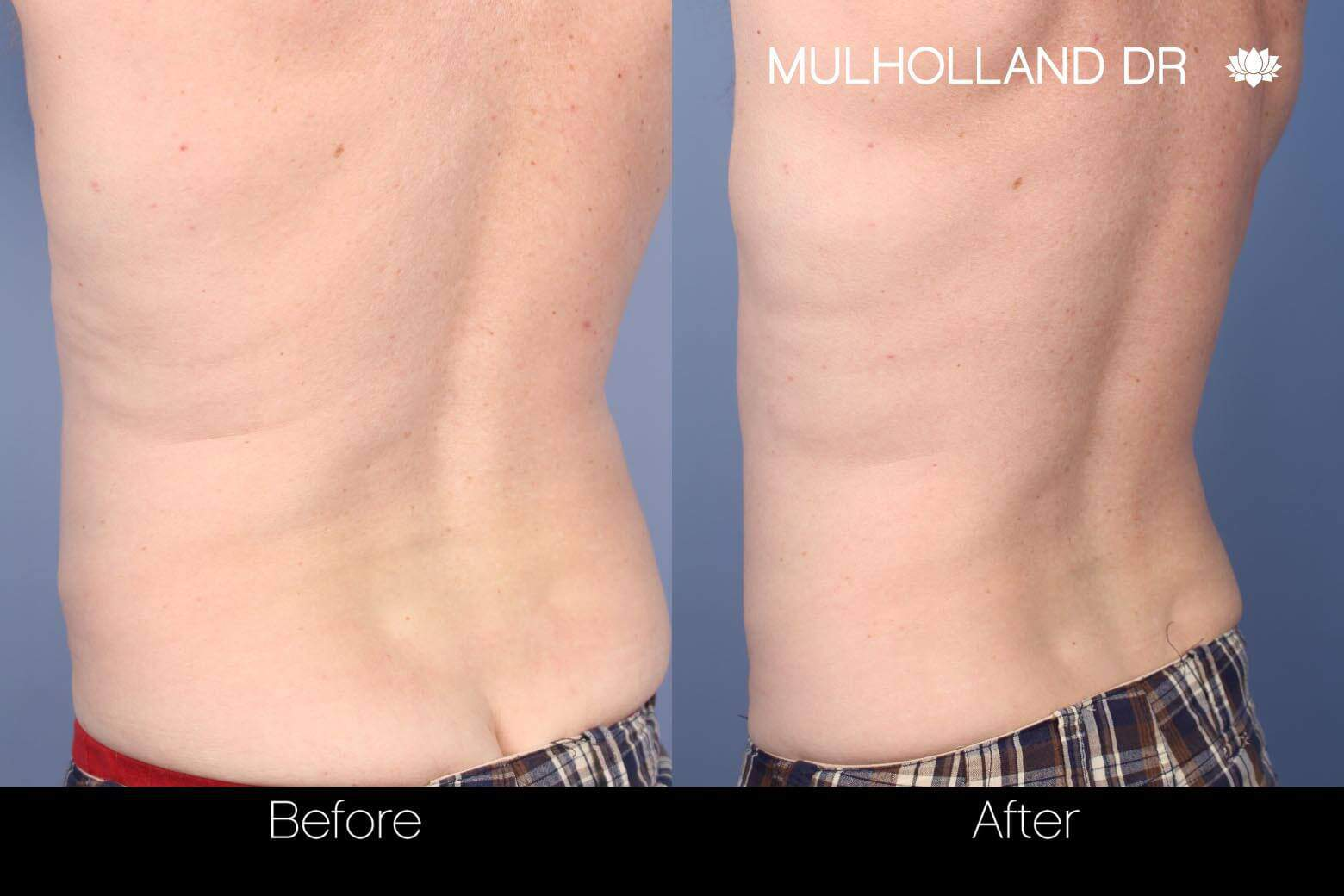 SculpSure - Before and After Gallery – Photo 9