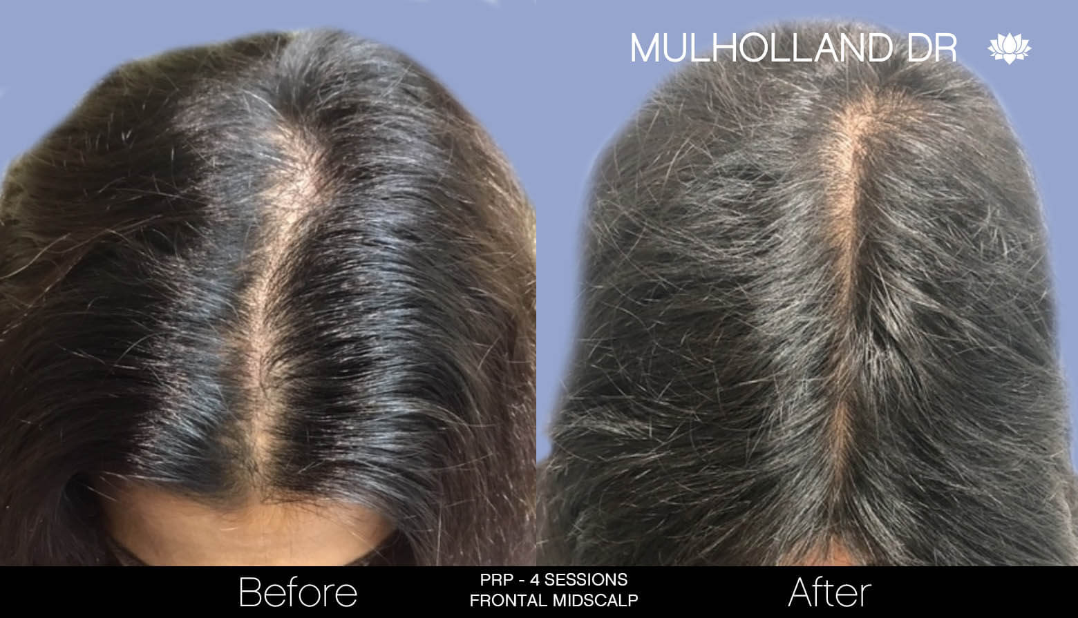 Non-Surgical Hair Restoration - Patient Before and After Gallery – Photo 11