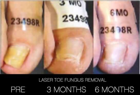 Toe Fungus Removal - Patient Before and After Gallery – Photo 11