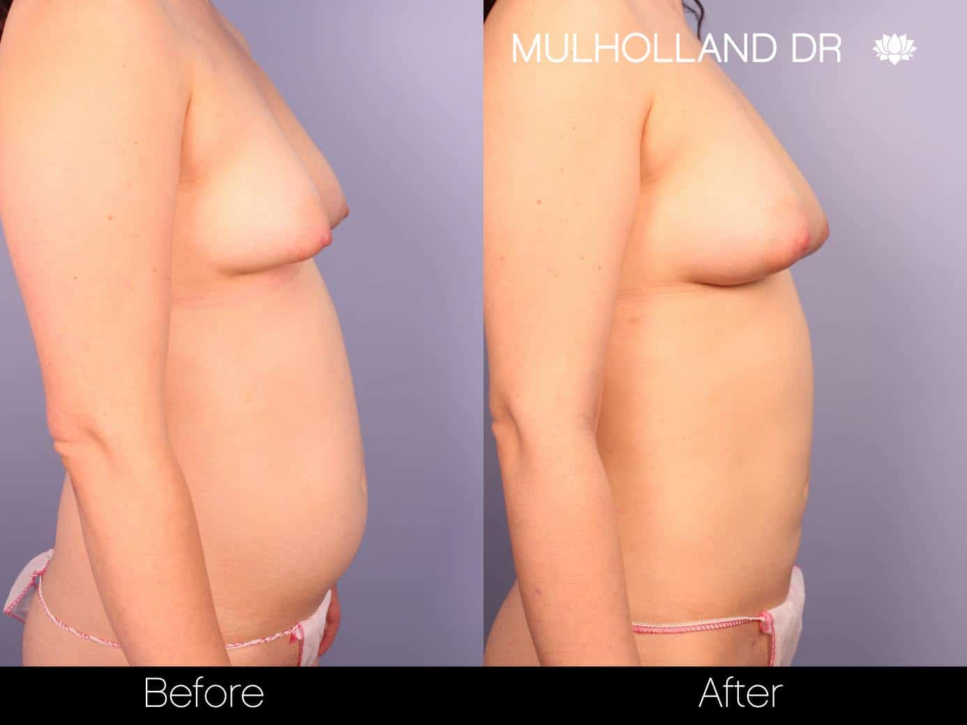 Fat Grafting Breast Augmentation - Before and After Gallery – Photo 11