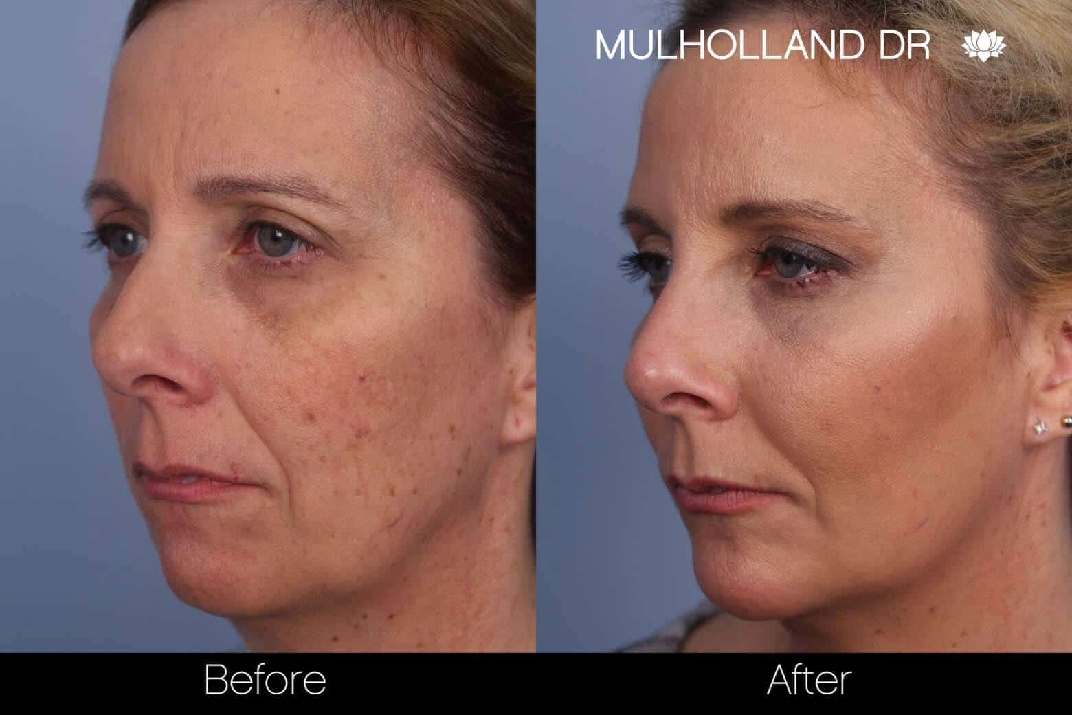 Microdermabrasion - Before and After Gallery – Photo 2