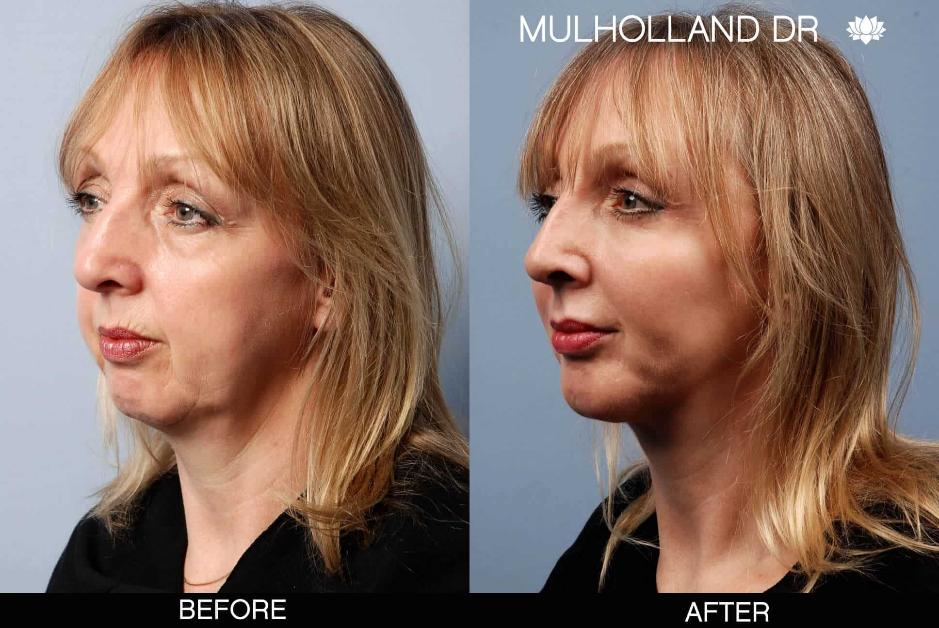 Facelift - Before and After Gallery – Photo 12