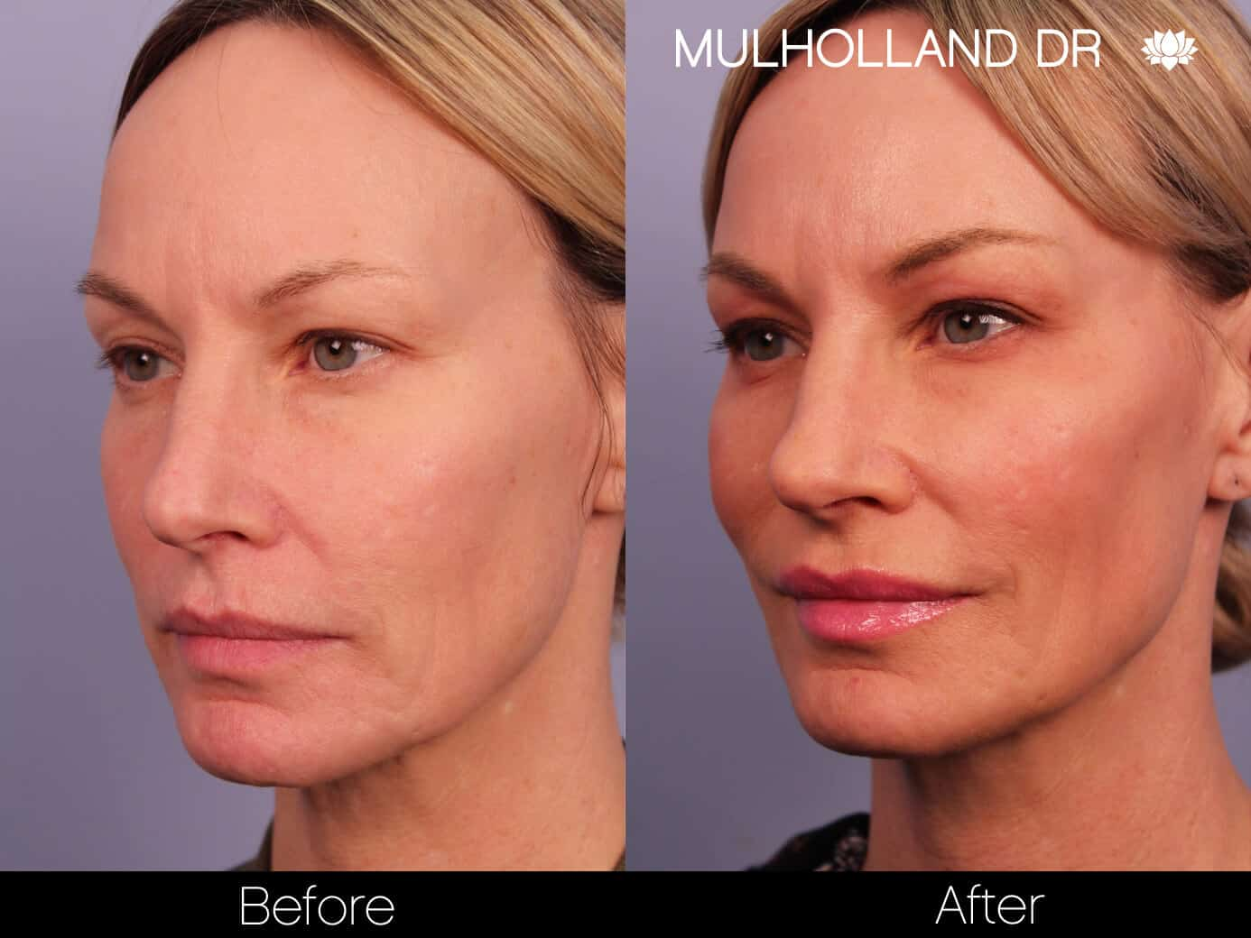 Microdermabrasion - Before and After Gallery – Photo 7