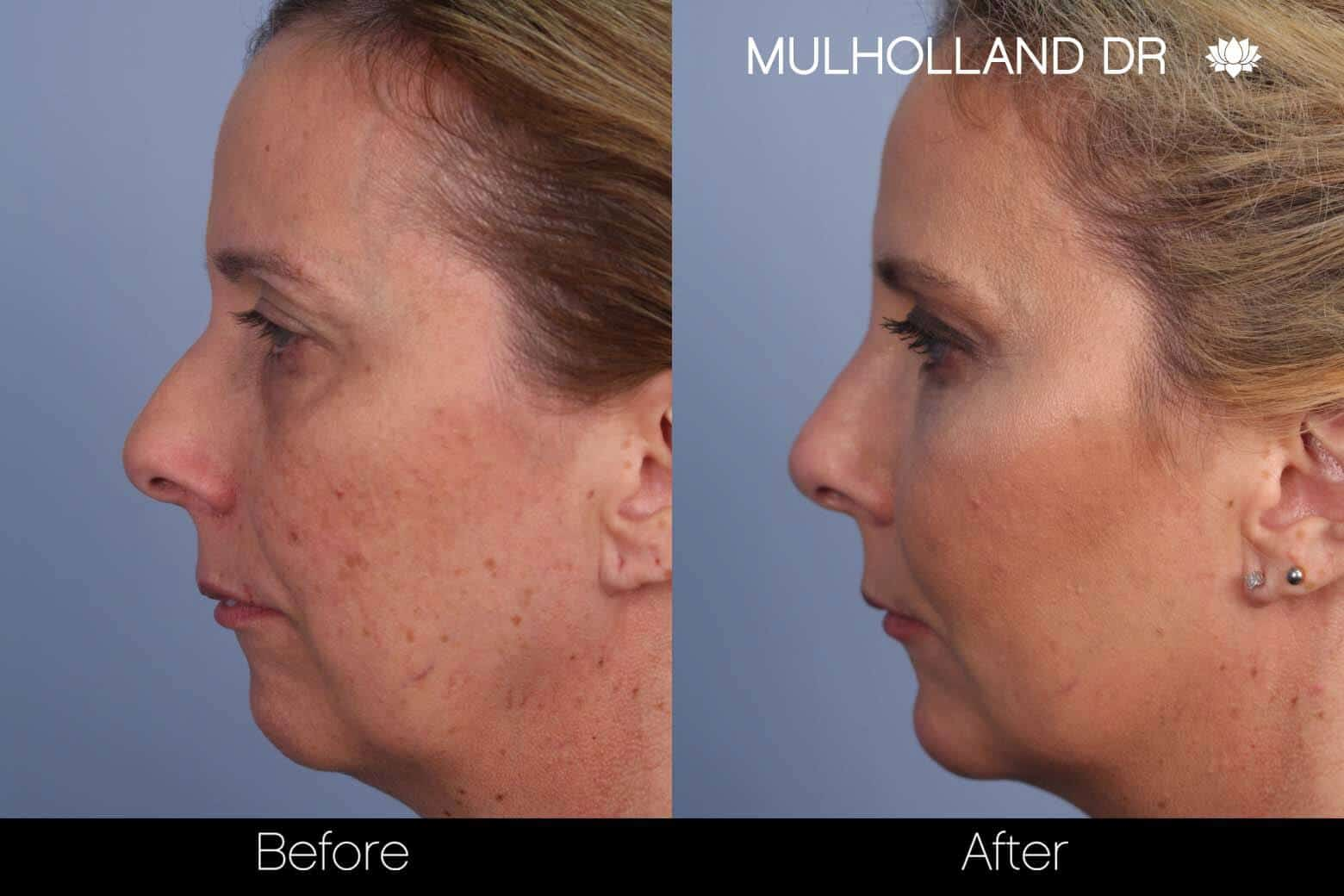 Microdermabrasion - Before and After Gallery – Photo 21