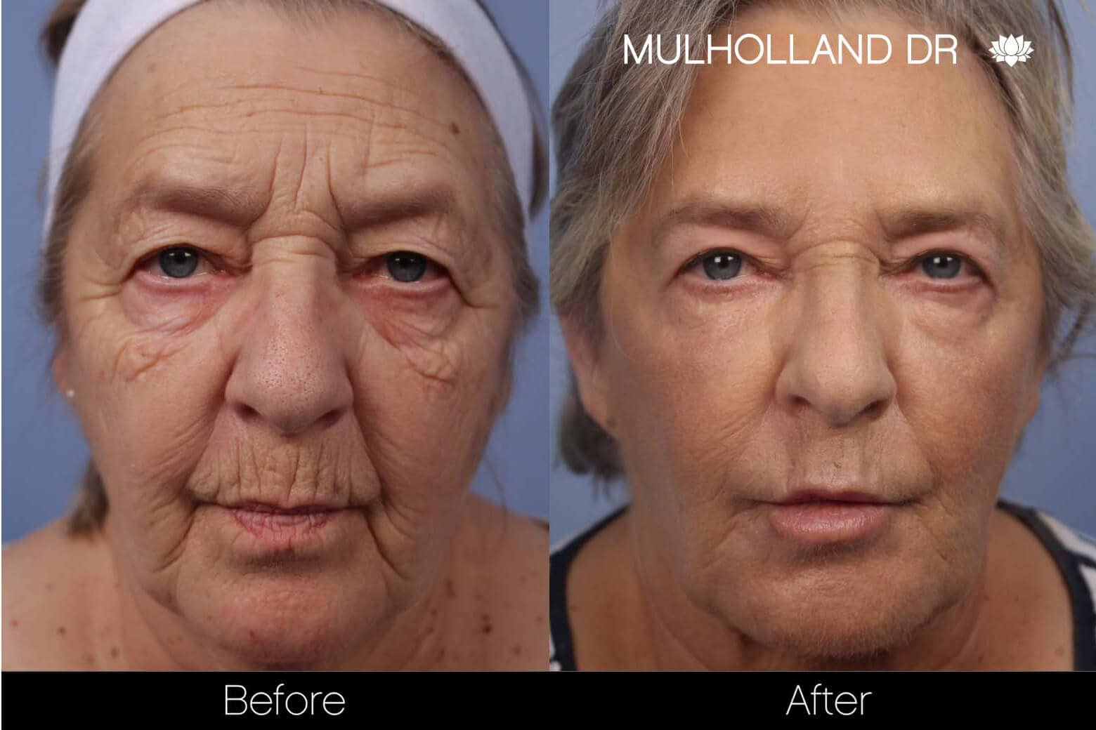 Facial Resurfacing and Rejuvenation - Before and After Gallery – Photo 4