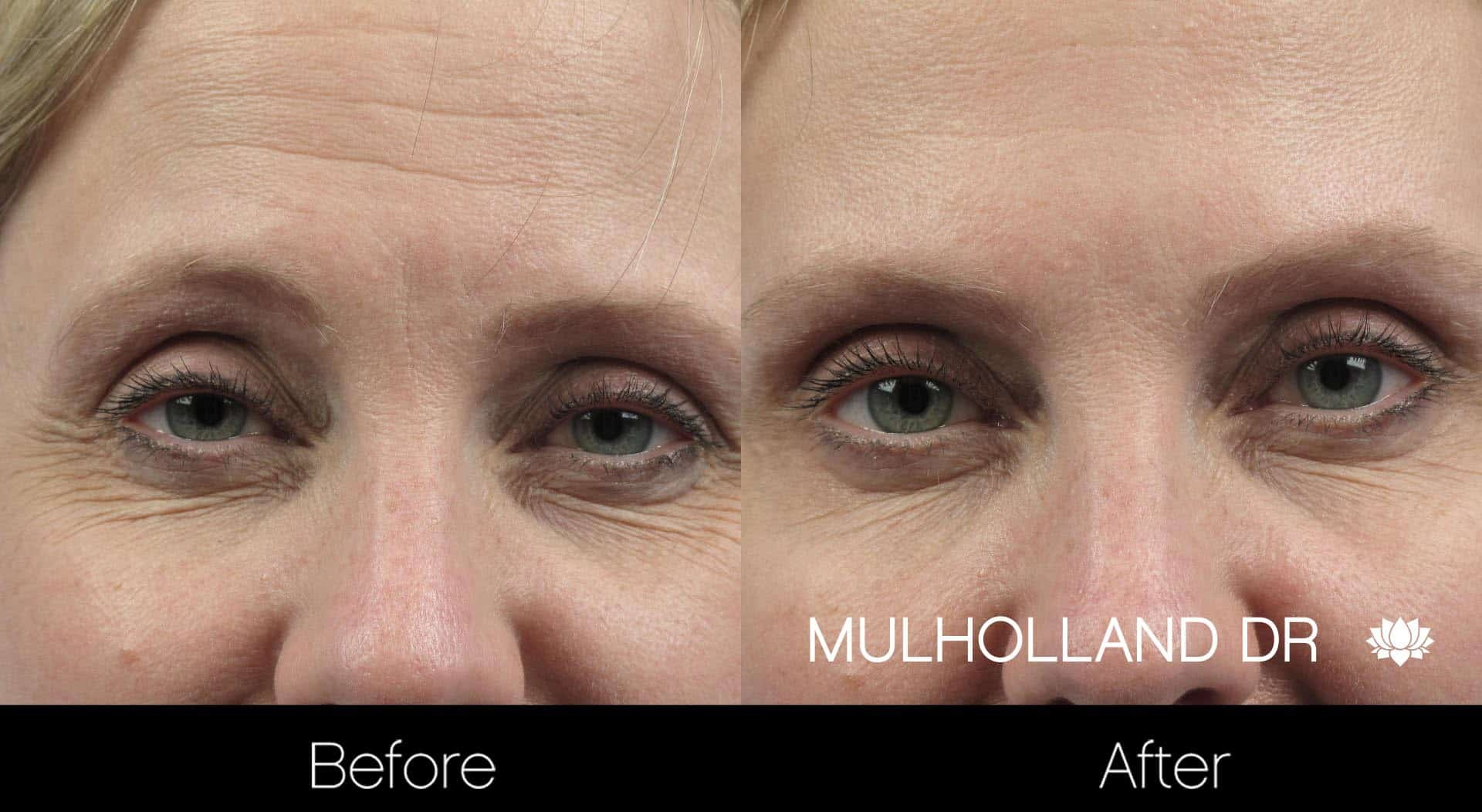 Botox Injectable - Before and After Gallery – Photo 1