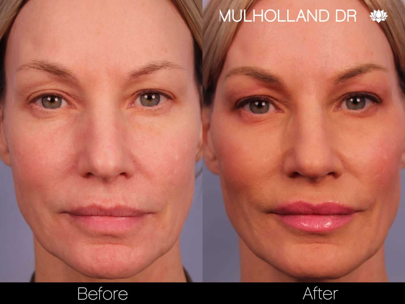 Non-Surgical Facelift - Before and After Gallery – Photo 1