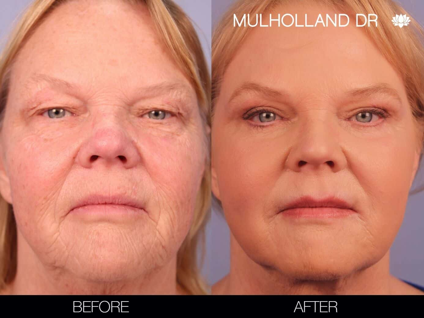 Laser Skin Resurfacing - Before and After Gallery – Photo 1