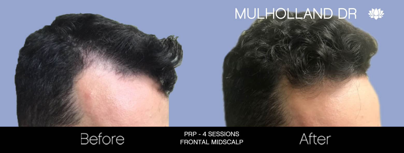 Non-Surgical Hair Restoration - Patient Before and After Gallery – Photo 1