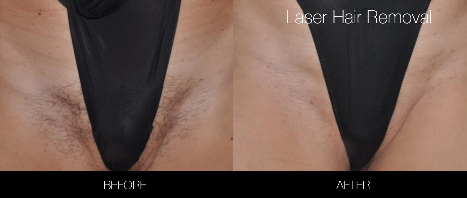 Bikini & Brazilian Laser Hair Removal - Patient Before and After Gallery – Photo