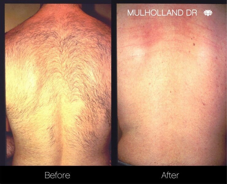 Laser Hair Removal - Patient Before and After Gallery – Photo 1