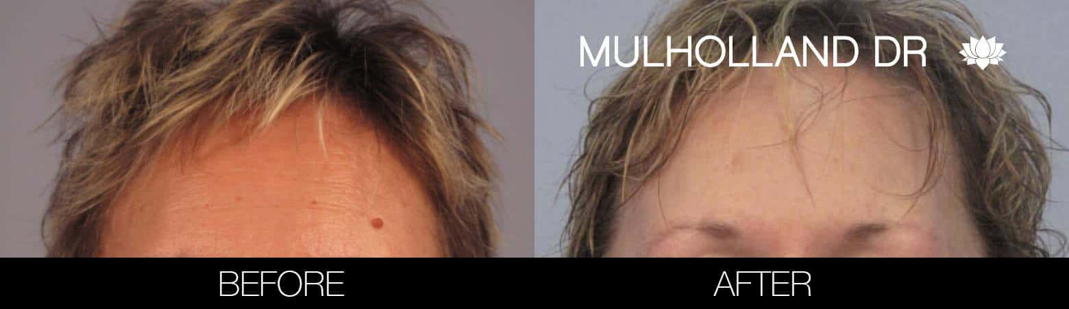 Mole Removal - Patient Before and After Gallery – Photo 1