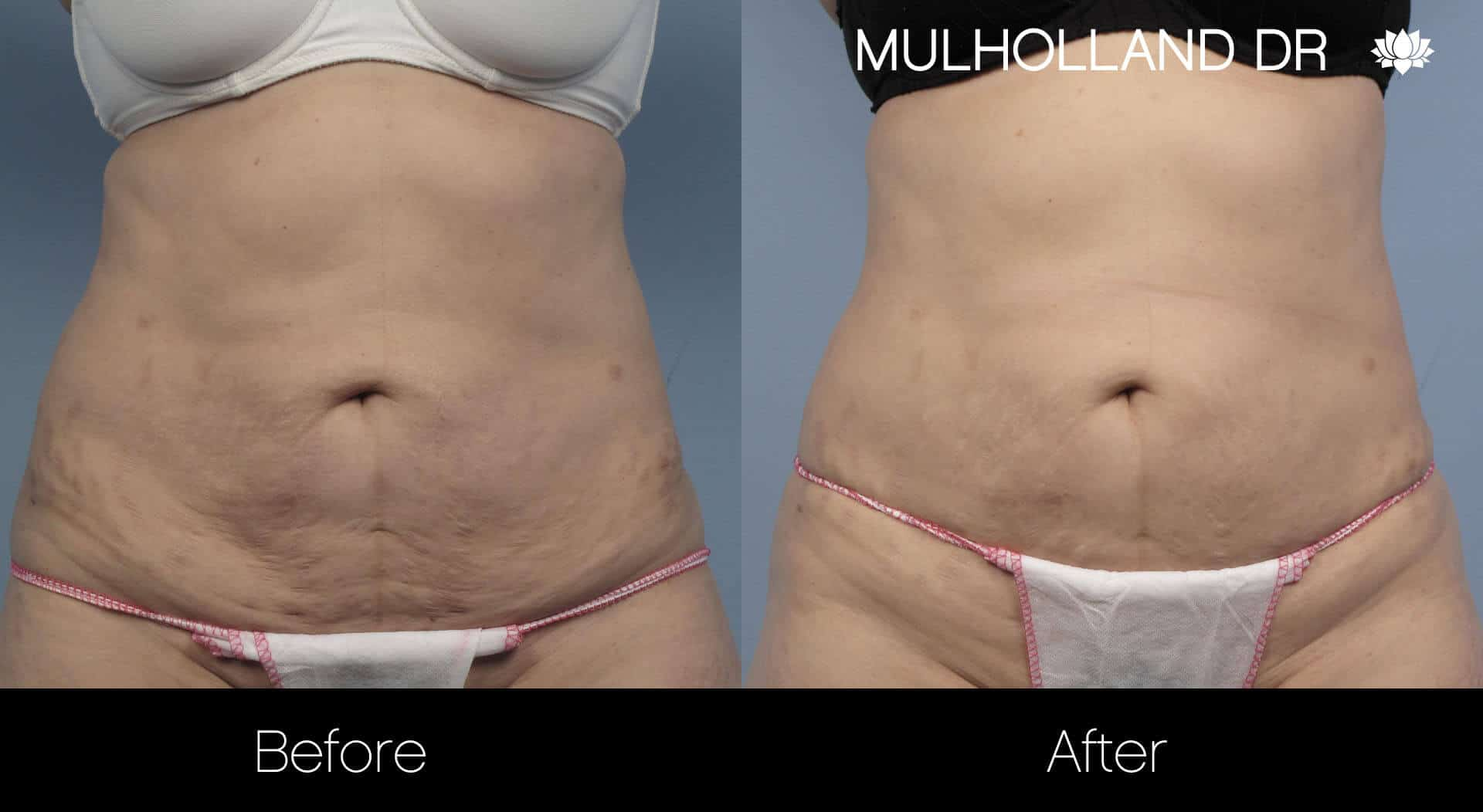 Laser Stretch Mark Removal - Patient Before and After Gallery – Photo 1
